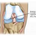 Anterior Cruciate Ligament Tear