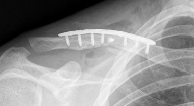 clavicle fracture 1